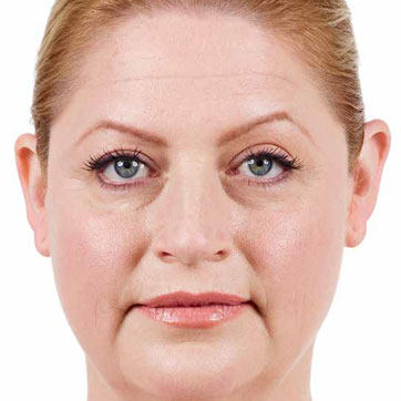 Laura Before Juvederm
