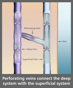 Perforating Veins Diagram