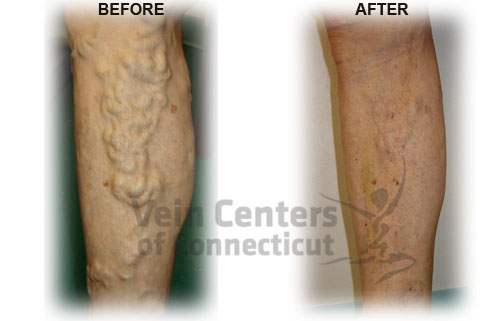 Vein Before & After
