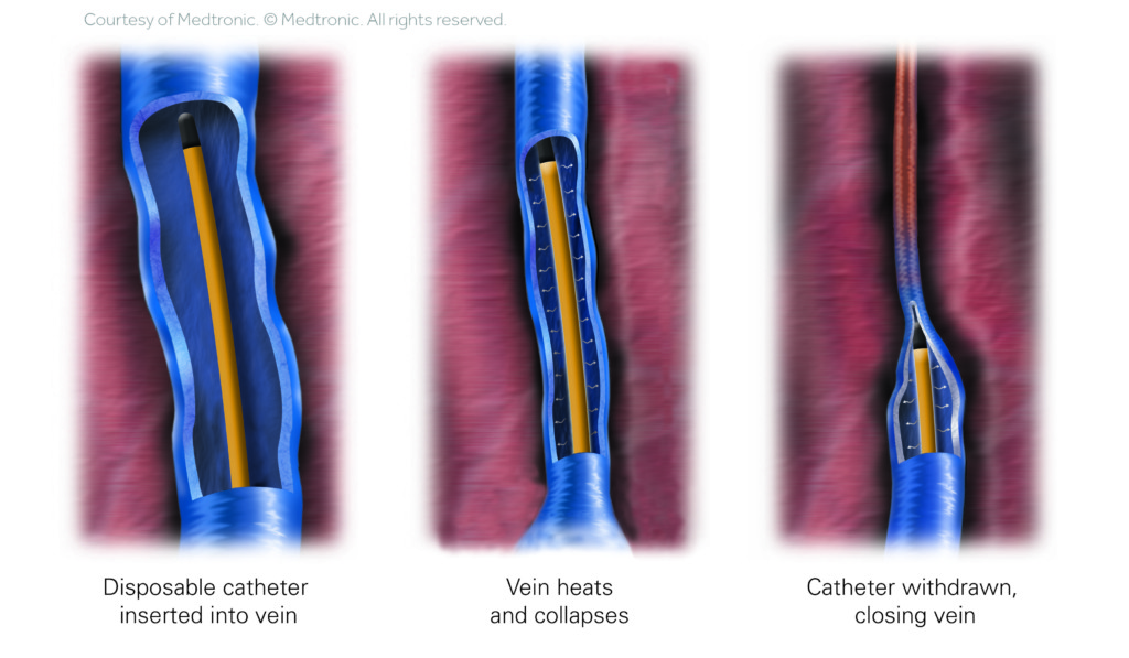 ClosureFast Vein Procedure Illustration